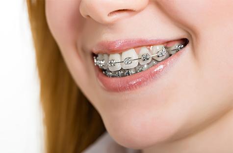 metal-braces-img