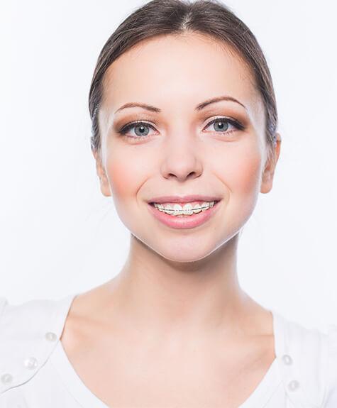 Girl with ceramic braces