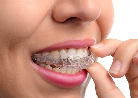 Clear aligners and smile