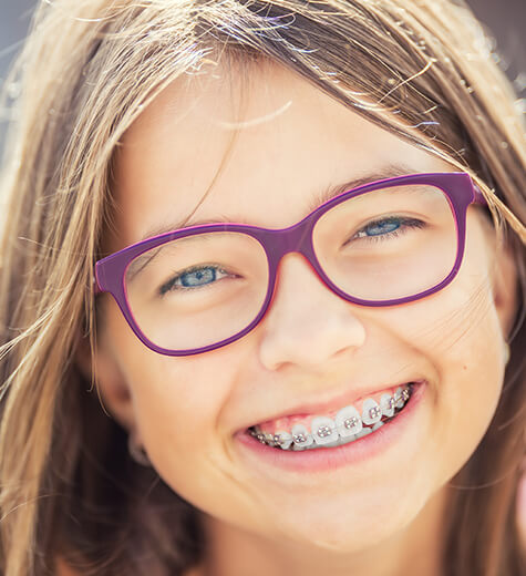 kids-braces-new