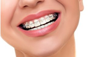 6 Key Things You Should Know Before Getting Braces - Putnam