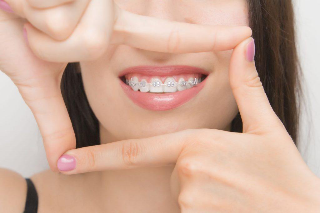 After braces care