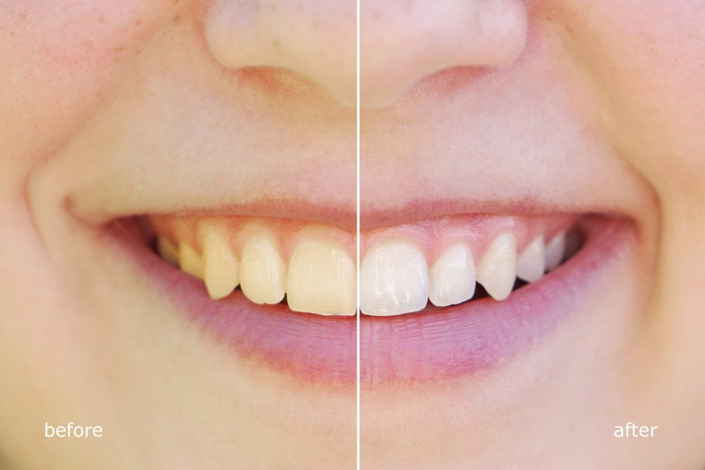 Stains due to Braces