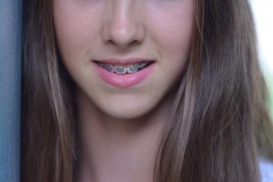 Gingvitis with Braces