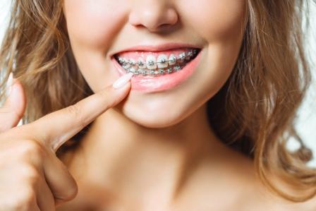 braces-pain-relief-remedies
